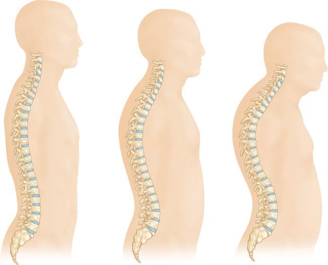 osteoporosi della colonna