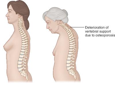 osteoporosi nella donna